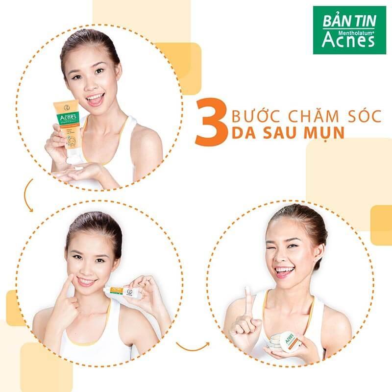 3 buoc cham soc lan da nhay cam sau mun voi acnes vitamin cleanser, acnes scar care, acnes vitamin cream