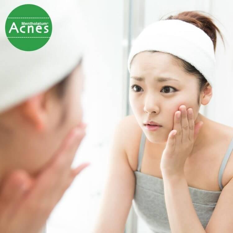chăm sóc da sau mụn sai cách khiến da sẽ dễ tổn thương khó phục hồi