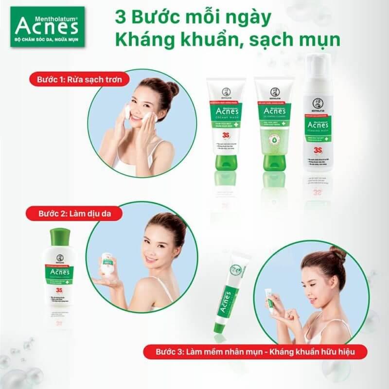 trị mụn nhanh chóng với 5 phút mỗi ngày cùng acnes