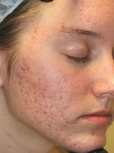 Hành trình phục hồi da đơn giản cho các bạn bị sẹo và vết thâm sau mụn