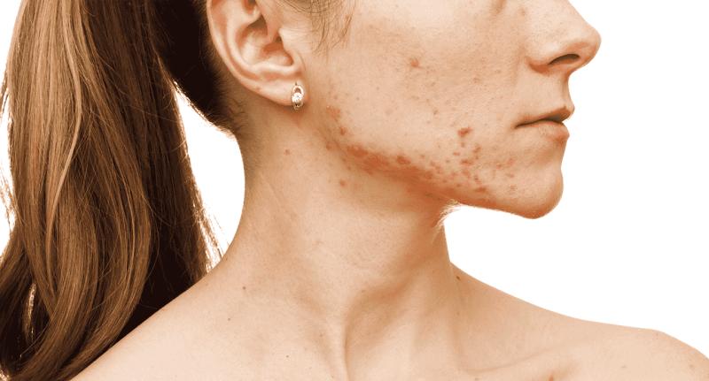 Mụn bọc không những khó điều trị một cách dứt điểm mà còn ảnh hưởng đến thẩm mỹ, dễ để lại sẹo lõm sau mụn. Cùng Acnes tham khảo những cách trị mụn bọc hiệu quả nhất trên vùng mặt, lưng hay các vùng da khác bằng phương pháp tự nhiên đến đặc trị nhé.
