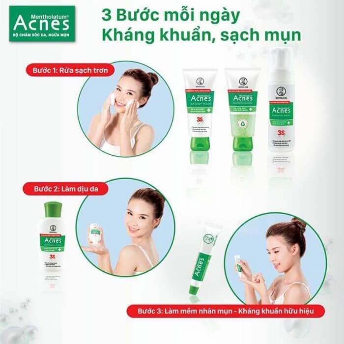 Acnes Soothing Lotion có thực sự an toàn cho da? 3 bước chăm sóc da cùng lotion kết hợp với sữa rửa mặt và gel trị mụn để đem lại kết quả tốt nhất.