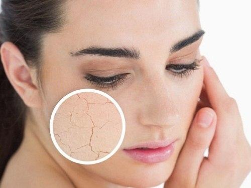 Dùng sữa rửa mặt trị mụn da dầu quá nhiều khiến da khô