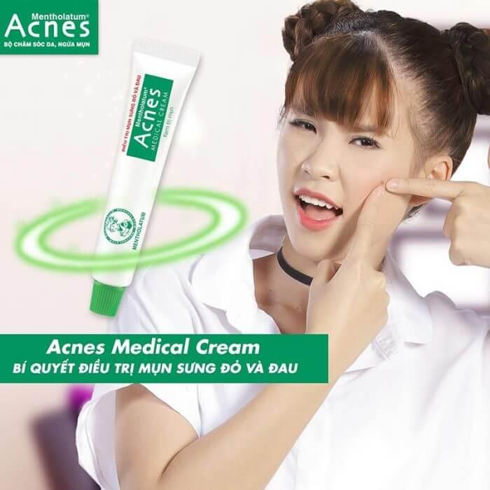 Acnes Medical Cream được chuyên gia Acnes điều chế riêng cho những loại mụn lớn như mụn bọc hay mụn mủ