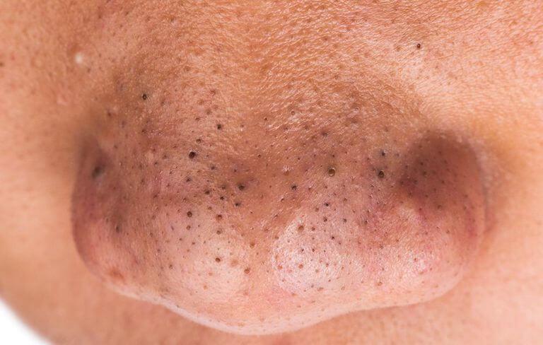 """Résultat de recherche d'images pour """"mụn đầu đen"""""""