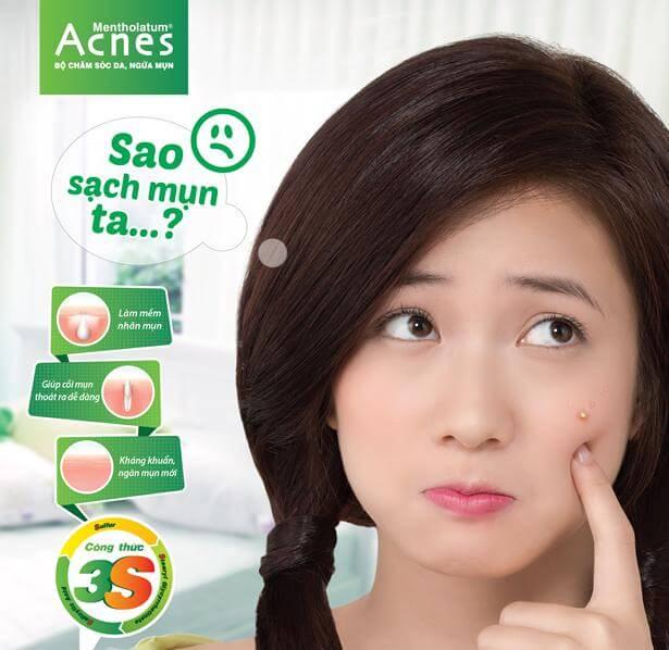 Cách trị mụn bọc sưng đỏ bằng kem trị mụn acnes