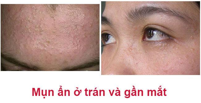 Mụn ẩn dưới da là loại mụn không viêm và có nhân mụn nằm sâu và chặt trong nang lông. Mụn thường có kích thước nhỏ và mọc thành cụm. Mụn ẩn tuy không gây ra đau đớn cho làn da nhưng lại khiến tổng thể bề mặt sần sùi, không mịn màng. Mụn thường có tiến triển chậm. Mụn ẩn thường xuất hiện nhiều nhất vùng quanh cằm, dưới má hoặc trán.