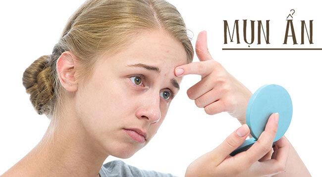 Mụn ẩn thường khó chữa trị vì nhân mụn nằm sâu dưới da, Tuy nhiên, nếu bạn xử lý đúng cách, bạn có thể tiêu diệt loại mụn này. Có rất nhiều phương pháp trị mụn ẩn khác nhau. Acnes sẽ hướng dẫn bạn cách trị mụn ẩn của Nhật an toàn và hiệu quả.