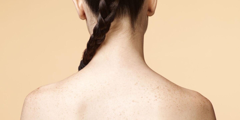 Gợi ý một số loại thuốc trị mụn lưng Nhật Bản an toàn cho da