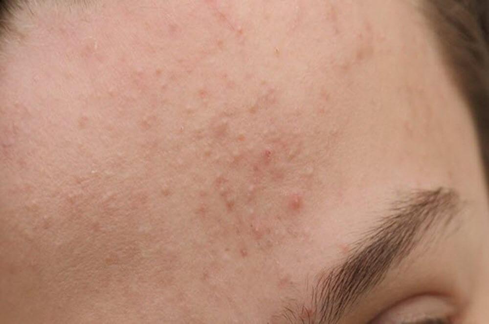 Mụn ẩn là một dạng mụn không viêm. Nằm sâu dưới lỗ chân lông, mụn ẩn không dễ dàng nhận thấy nếu chỉ nhìn sơ trên bề mặt da. Để nhận biết mụn ẩn, bạn có thể thử soi ngược da dưới ánh sáng. Lúc này bề mặt da trở nên sần sùi với những đốm nổi cộm, không còn mịn màng trơn láng. Hoặc đơn giản hơn, bạn có thể cảm nhận chúng khi rửa mặt. Đầu ngón tay khi chạm trên má có cảm giác lộm cộm dưới da.