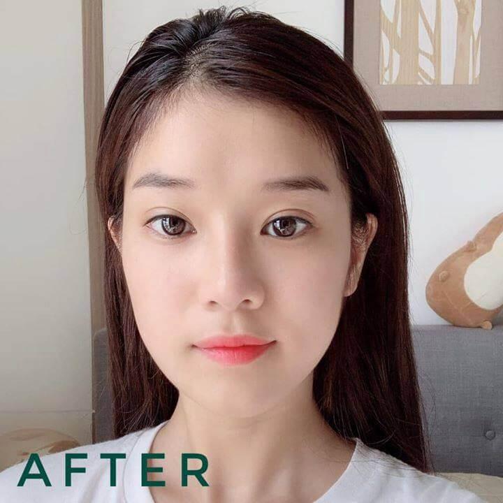 hoang yen review acnes tri tham