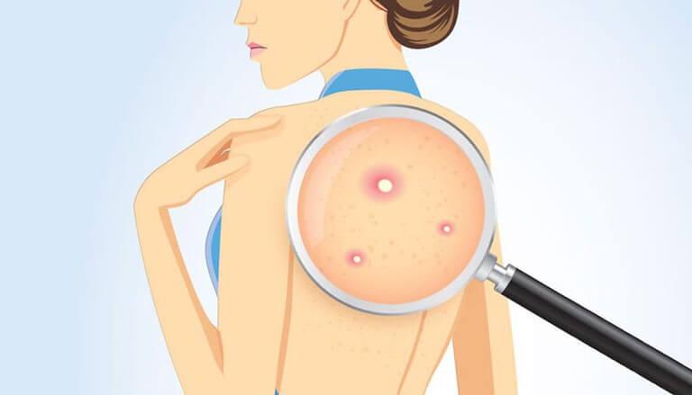 Cảnh báo 4 vấn đề sức khỏe khi có biểu hiện nổi nhiều mụn trên lưng