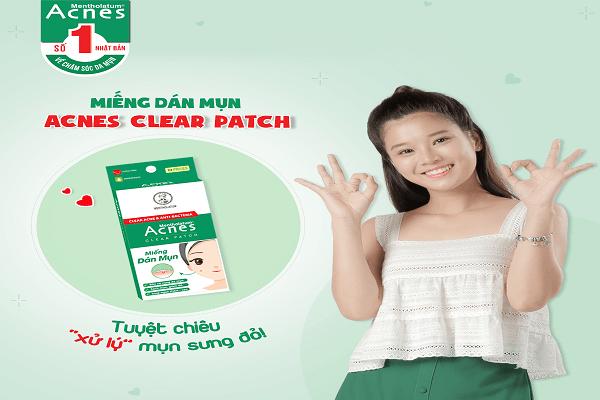 Miếng dán mụn Acnes Clear Patch giúp kháng khuẩn