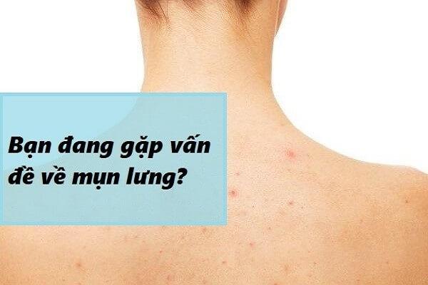 Lý do khiến mụn lưng mọc ngày càng nhiều và tái trở lại thường xuyên