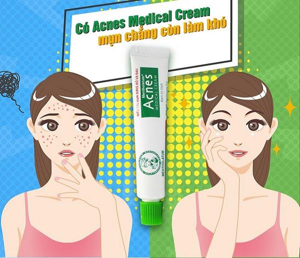 Acnes Medical Cream - An toàn trong điều trị mụn trứng cá, mụn bọc sưng đỏ.