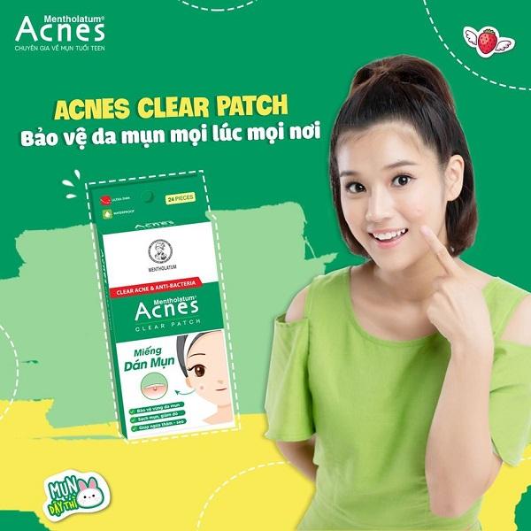 Miếng dán hút mụn của Acnes sử dụng đơn giản và tiện lợi