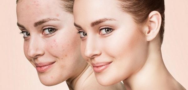 Bảo vệ làn da trong môi trường bụi bẩn