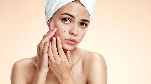 Cách chăm sóc và phục hồi da
